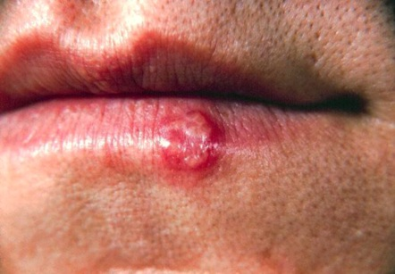 Herpes Cold Sores On Lips