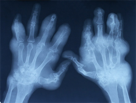 Arthritis-stricken hands. [CREDIT: SXC]