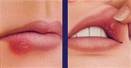 A cold sore, at left, and a canker sore, right. [CREDIT: COLGATE.COM]