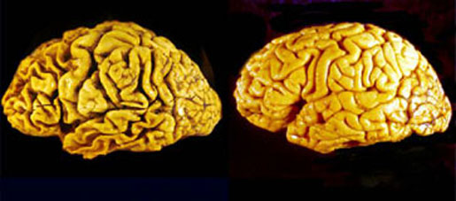 The brain of a person with Alzheimer's (left) compared to a normal brain (right). [CREDIT: The Commonwealth Scientific and Industrial Research Organisation of Australia]
