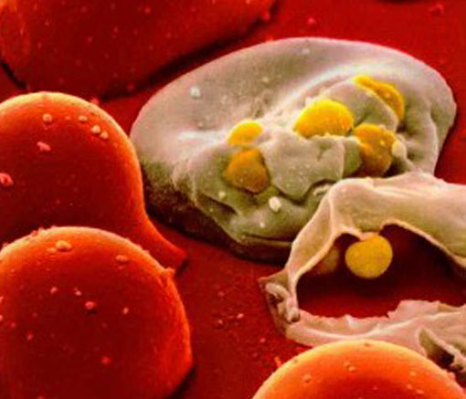 A microscopic view of a cell infected with HIV [CREDIT: csend.hu]