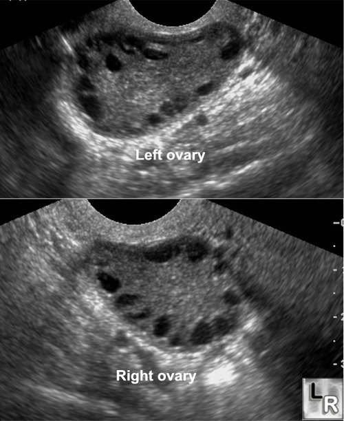 Ultrasound of ovaries showing many cysts. [Credit: Learningradiology.com]