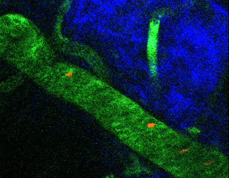 This magnified image shows the skin in a live mouse. Red represents cancer cells, green marks the blood vessels, and blue shows the tissues under the skin. [Credit: Wei He]