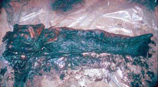 Some scientists fear that frozen bodies, such as this one uncovered in Siberia, will transmit preserved smallpox virus. [Credit: Imre Friedmann]