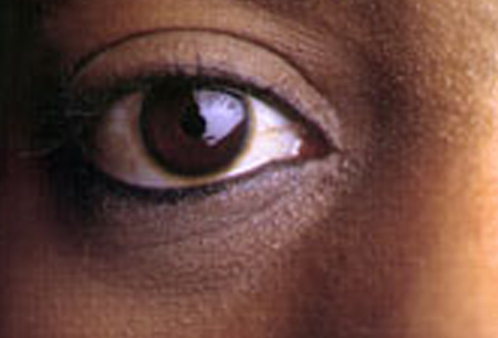 What causes bags under the eye? [CREDIT: NATIONAL EYE INSTITUTE, NIH]
