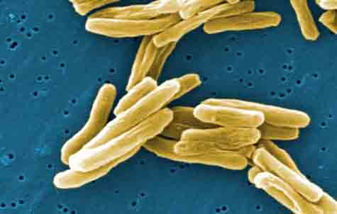 An extreme closeup of the tuberculosis bacteria. <br>Doctors are now seeing some success in treating the drug resistant form of this disease. <br>[Credit: CDC/ Dr. Ray Butler; Janice Carr]