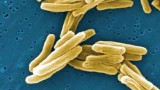Deadly Tuberculosis Maybe Not So Deadly, Study Finds