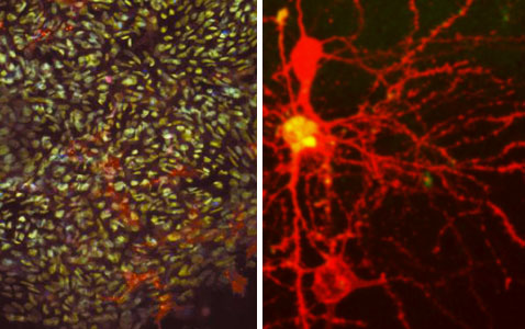 Scientists turn skin cells into stem cells (left), and then into neurons (right), and now wait for them to die. <br>[Credit: Left-NIH, Right-Arnaud333]
