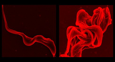 A normal <em> T. brucei </em> parasite (left) mutates after being exposed to rapamycin (right).  Scientists might be able <br> to use this mechanism to treat African sleeping sickness.  [Credit: Antonio Barquilla]