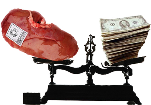 Kidneys top the list of needed organs, and members of the transplant community debate whether or not to provide monetary incentives to increase donations. [Credit: dnnya17, Remo Del Orbe and beansoup_67; flickr.com; Compiled by Carina Storrs]