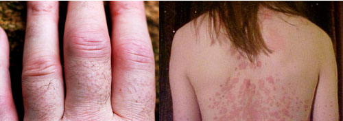 Rheumatoid arthritis (left) and psoriasis (right) are two of the disorders that may be caused by an excess of immune cells called Th-17. [Credit: David Jones, flickr.com (left); The Wednesday Island, Wikimedia (right)]
