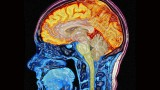 Forgotten Memories Linger in the Brain