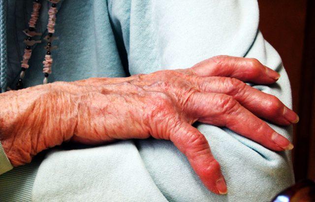 Is Dementia Screening Worth It?
