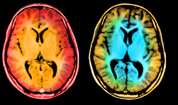 The Brain Scan Appeal