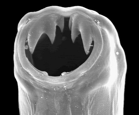 Hookworms and Whipworms: Our Immune System's Attachment to Parasites