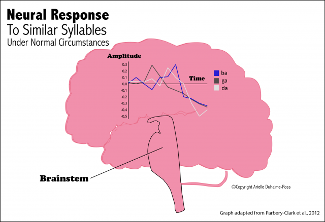 Neural Response Graphic