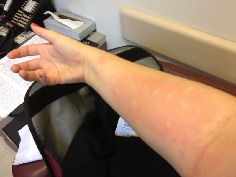 What is it like to get a skin allergy test? | Scienceline