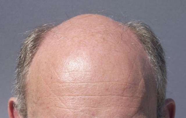 In the future, will baldness recede from the lives of men?