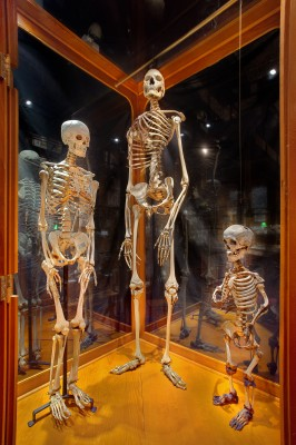 "Skeletons of an average sized male, a 7'6"" giant, and a 3'6"" dwarf [Image credit: © 2009 George Widman Photography LLC, Licensed for use by the Mutter Museum of The College of Physicians of Philadelphia]"