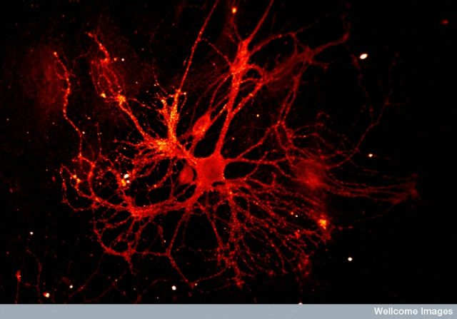Shiny happy neurons
